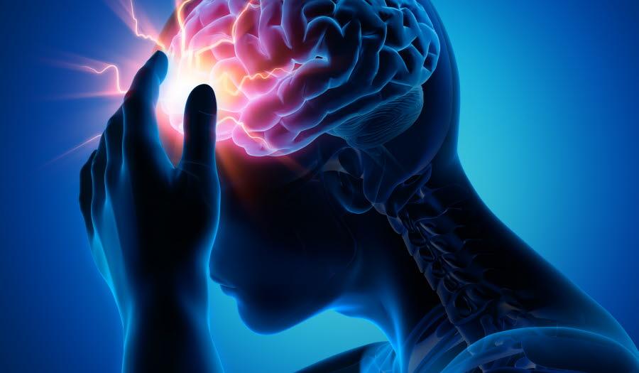 Migrene illsutrasjon